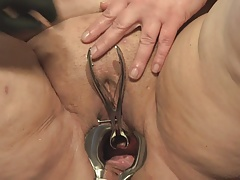 Speculum in Peehole of  B Part I